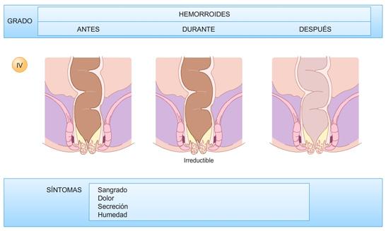 Hemorroides-grado-4