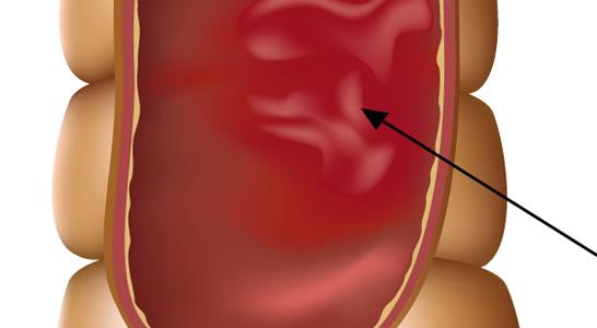 eii-centro-proctologico