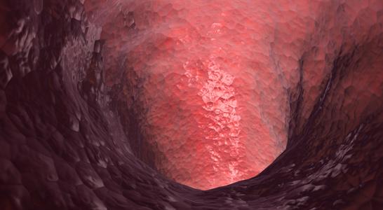 fistulas-centro-proctologico